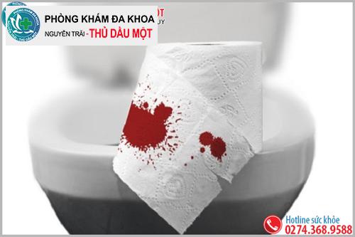 Đại tiện ra máu là dấu hiệu bệnh trĩ rất điển hình