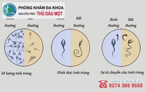Tinh trùng yếu là dấu hiệu gây vô sinh ở nam giới