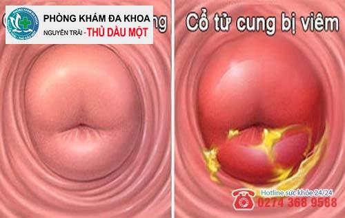Viêm cổ tử cung nguyên nào dẫn đến huyết trắng màu vàng