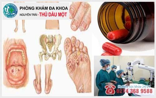 Phương pháp hỗ trợ điều trị bệnh lậu hiệu quả