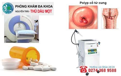 Cách hỗ trợ điều trị polyp cổ tử cung hiệu quả hiện nay