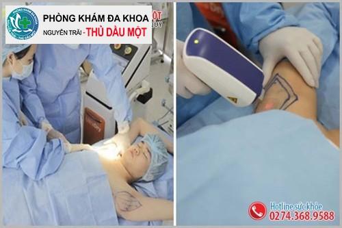 Phương pháp điều trị hôi nách hiệu quả tại Đa Khoa Thủ Dầu Một