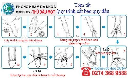 Tóm tắt quy trình cắt bao quy đầu công nghệ Hàn Quốc