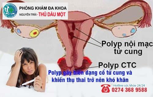 Tác hại của polyp cổ tử cung ảnh hưởng đến sức khỏe chị em