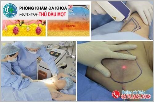 Phương pháp phẫu thuật cắt tuyến hôi nách hiệu quả an toàn