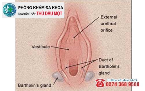 Viêm tuyến bartholin sẽ nang hóa