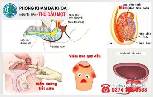 Nguyên nhân bệnh lý gây viêm nhiễm sinh dục nam