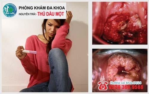 Tác hại khôn lường của viêm lộ tuyến cổ tử cung