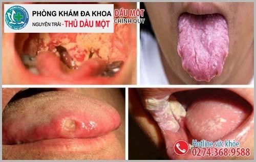 Hình ảnh bệnh lậu ở miệng, vòng họng
