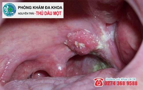 Nốt sùi ở họng giai đoạn nặng to hơn và tiết dịch mủ gây đau