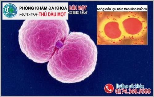 Những thông tin về song cầu khuẩn lậu Neisseria Gonorrhoeae