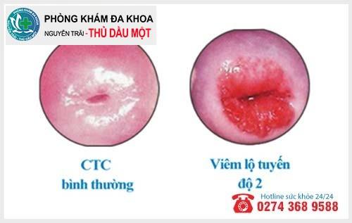 Thế nào là viêm lộ tuyến cổ tử cung cấp độ 2?