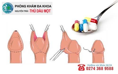 Phương pháp hỗ trợ trị viêm da cậu nhỏ hiệu quả