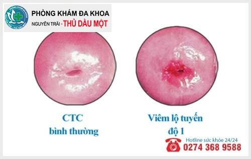 Viêm lộ tuyến cổ tử cung cấp độ 1 bạn không nên xem nhẹ