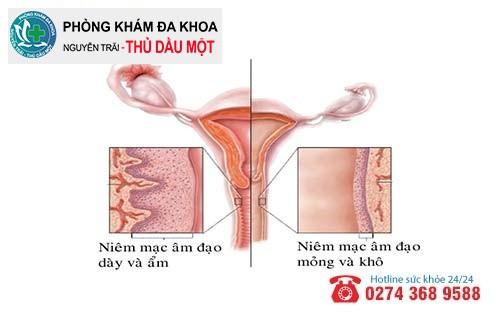 Viêm teo âm đạo là căn bệnh nguy hiểm